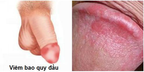 Triệu chứng viêm bao quy đầu
