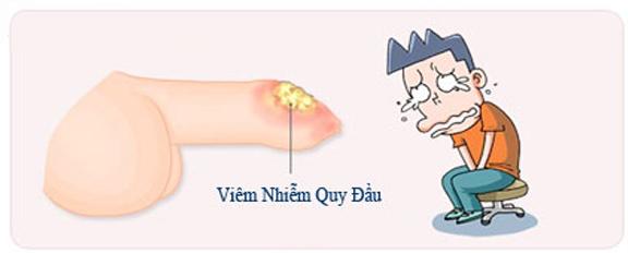 Dài bao quy đầu nguy cơ dẫn tới viêm bao quy đầu