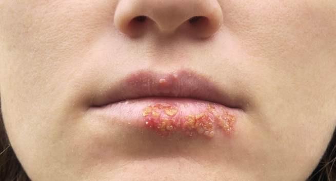 Bệnh mụn rộp sinh dục ở miệng