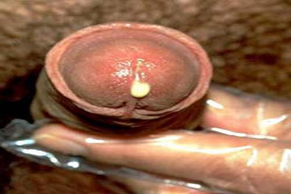 dịch mủ xuất hiện ở đầu dương vật