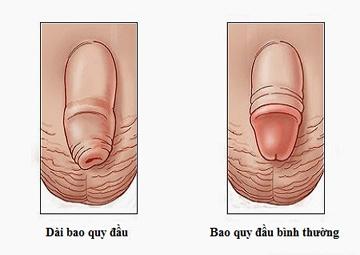 khac-phuc-bao-quy-dau-dai-nhu-the-nao