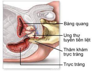 Các giai đoạn của bệnh u xơ tuyến tiền liệt